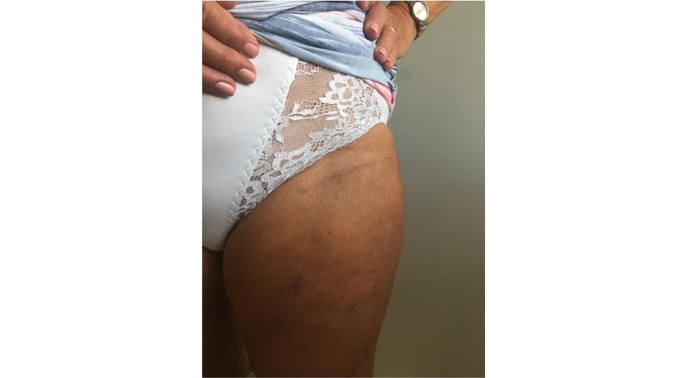 Bikini cut hip replacement
