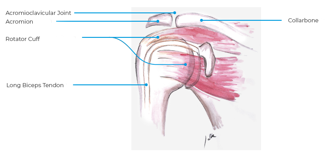 Collarbone Shoulder Instability